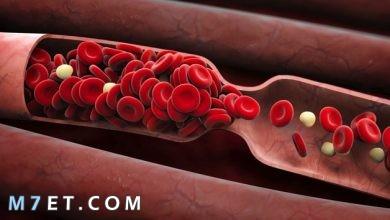 Photo of أهم المعلومات حول تخثر الدم
