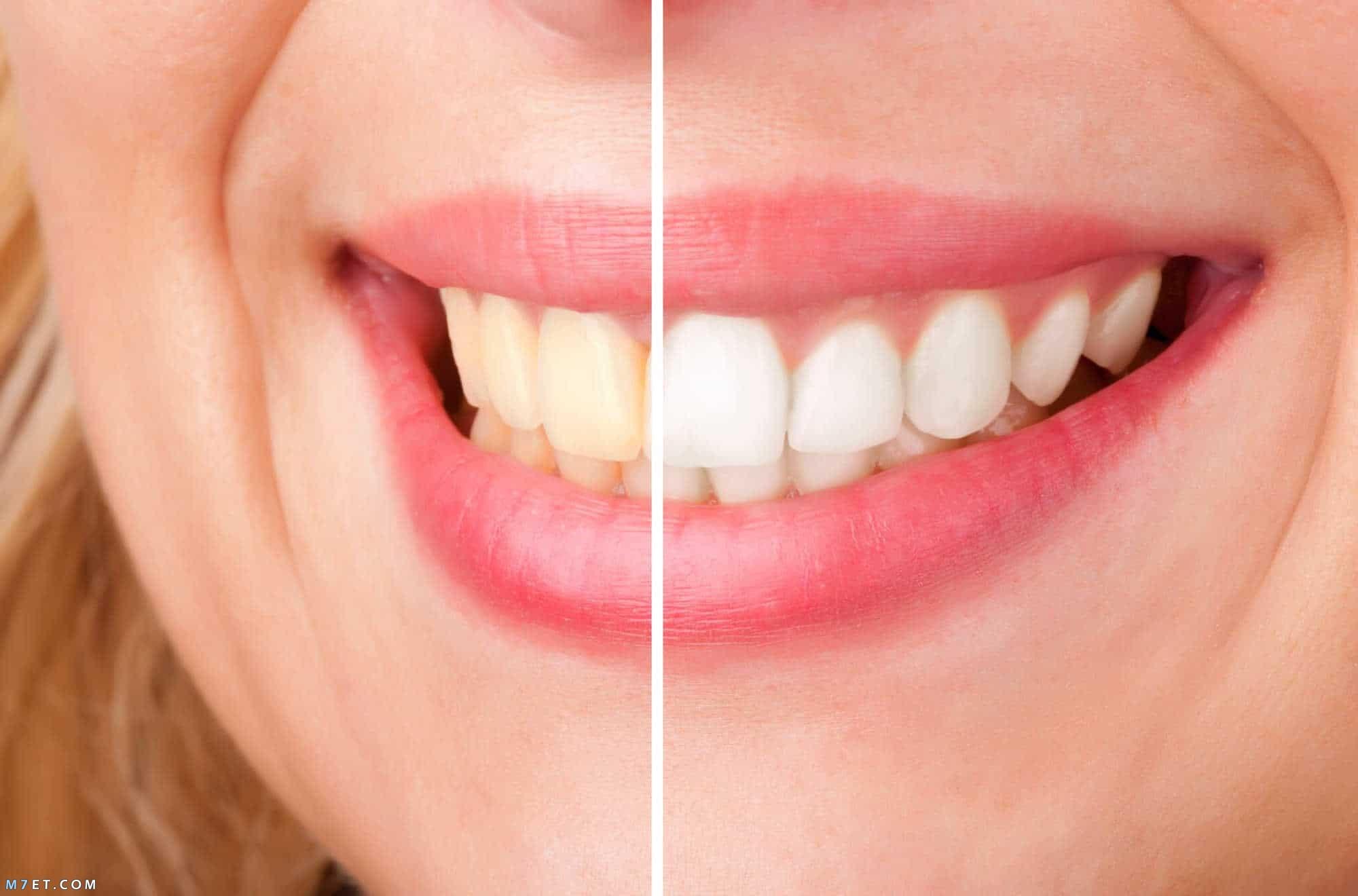 طريقة تبييض حشوات الاسنان