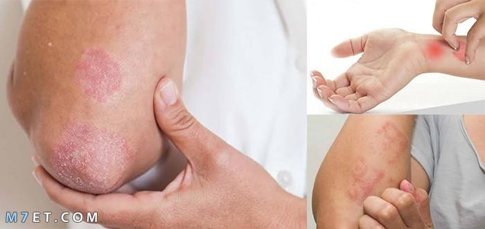أمراض الجلد الفطرية