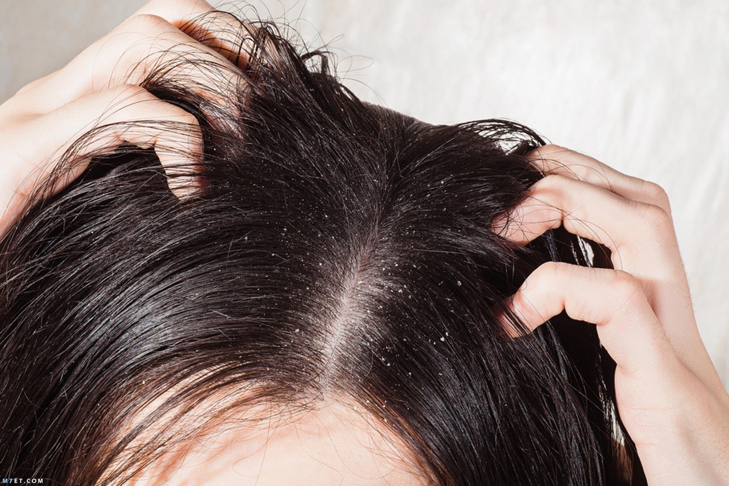 الشعر الدهنى