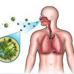 التهاب الشعب الهوائية المصاحب للتدخين