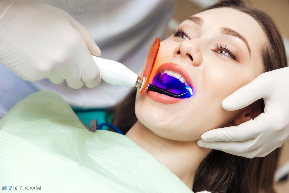 تقويم الأسنان بالليزر
