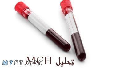 Photo of تحليل mch وما هي دلالاته المختلفة