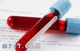 تحليل plt للصفائح الدموية