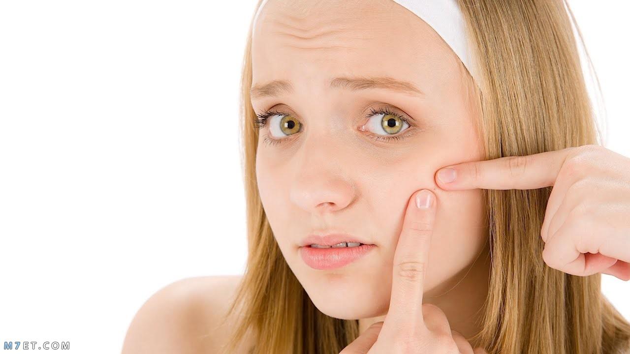 طريقة إزالة آثار الحبوب من الوجه