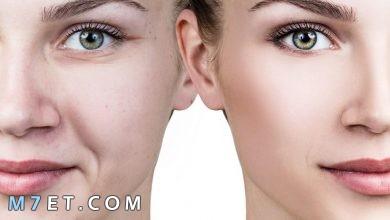 Photo of أفضل طريقة إزالة آثار الحبوب من الوجه مجربة ومضمونة