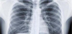 مرض ذات الرئة وعلاجة