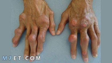 Photo of دواء لعلاج النقرس | أشهر 12 طريقة لعلاج النقرس بالأعشاب