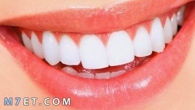 Photo of افضل طرق تجميل الاسنان بدون تقويم
