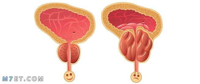 دواء لعلاج البروستاتا  8 أعراض لتضخم البروستاتا عند الرجال