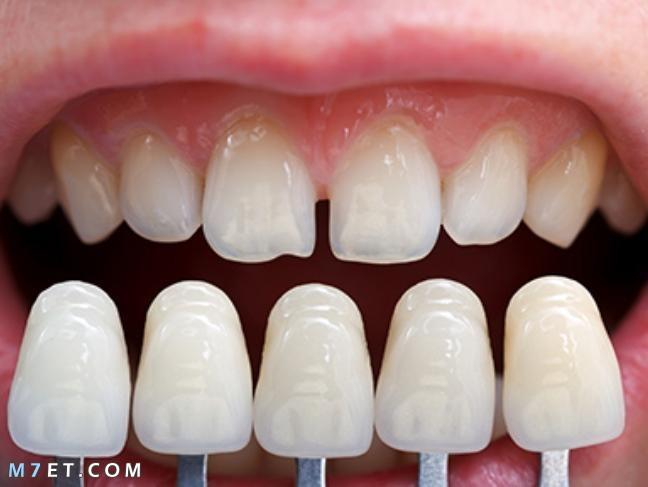 تلبيس الاسنان المؤقت