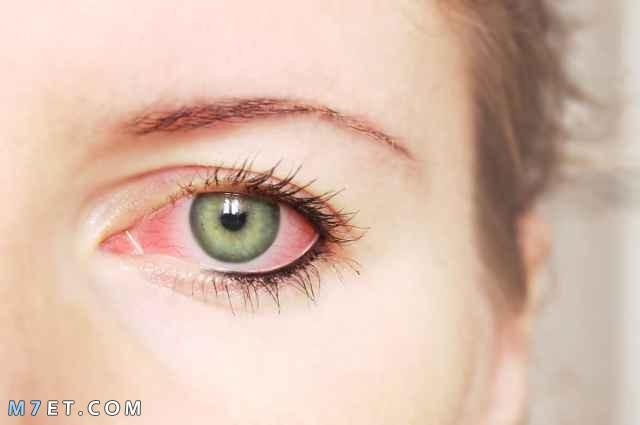 أضرار أشعة الجوال على العين