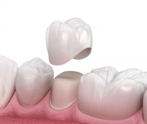تلبيس الاسنان المؤقت | 7 أنواع من تلبيسات الأسنان