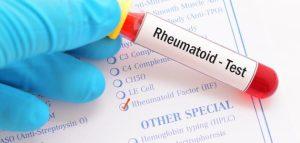 تحليل الروماتيزم أسبابه وأعراضه