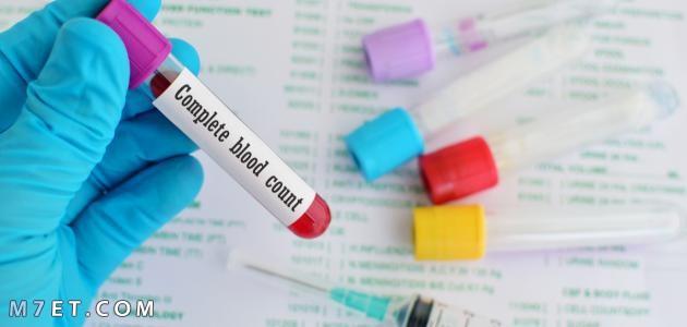 تحليل فقر الدم
