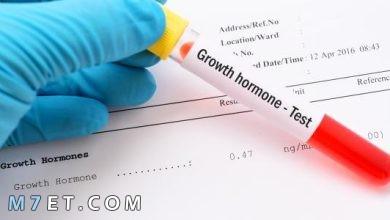 Photo of أنواع تحليل هرمون النمو بالتفصيل