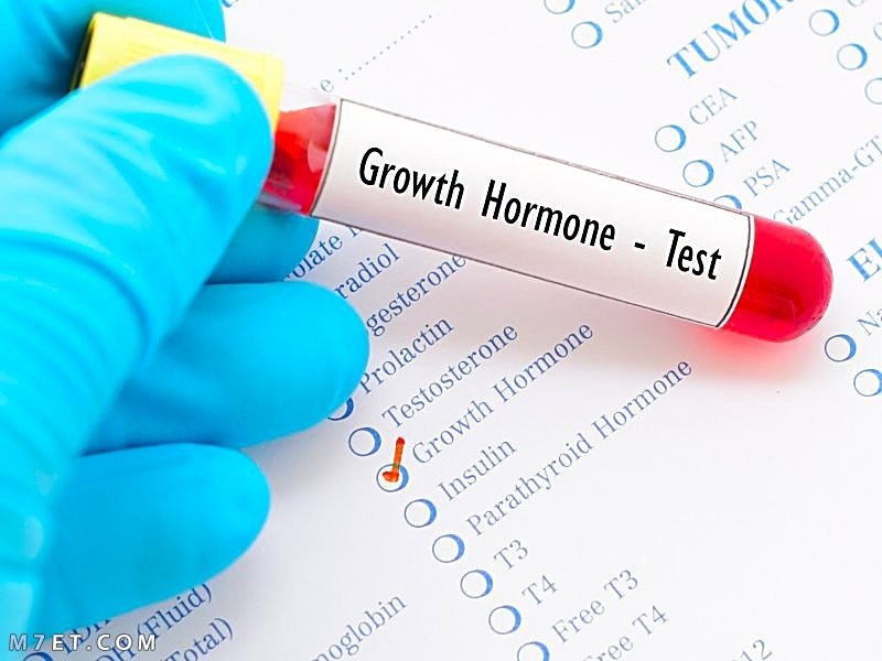 تحليل هرمون النمو