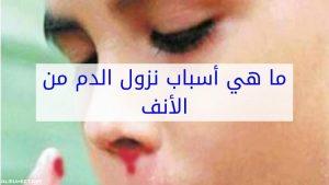 سبب نزول دم من الأنف