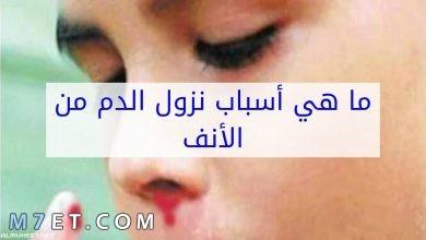 Photo of سبب نزول دم من الأنف